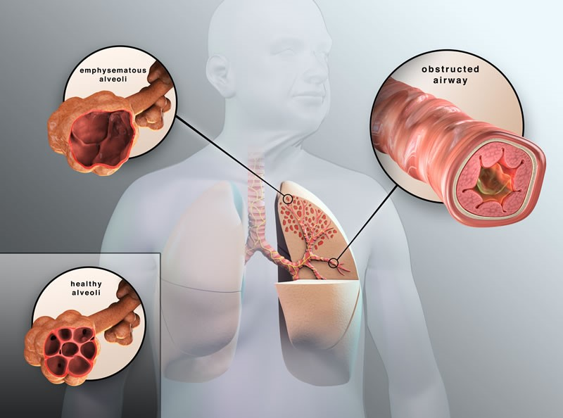 COPD Symptoms and Stages | Chronic Obstructive Pulmonary Disease