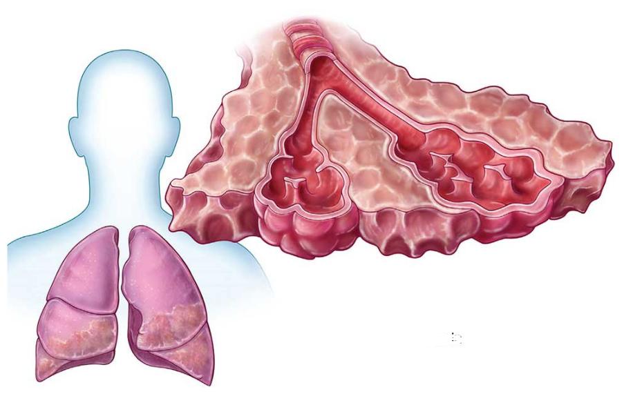 Tìm hiểu về bệnh xơ phổi - Nguyên nhân, triệu chứng, biến chứng và giải pháp tối ưu